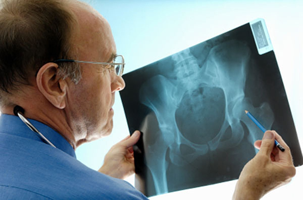 The Dangers of a DePuy Pinnacle Hip Implant | Personal
